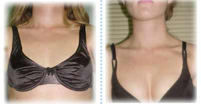 herbal breast enlargement